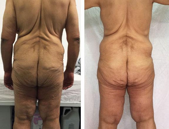 7 trucuri pentru tonifierea pielii lăsate după slăbire